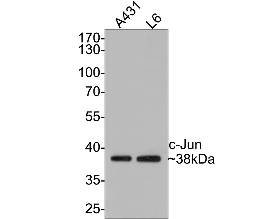 Western blot analysis of c-Jun on different lysates. Proteins were transferred to a PVDF membrane and blocked with 5% BSA in PBS for 1 hour at room temperature. The primary antibody (ET1608-3, 1/500) was used in 5% BSA at room temperature for 2 hours. Goat Anti-Rabbit IgG - HRP Secondary Antibody (HA1001) at 1:5,000 dilution was used for 1 hour at room temperature.<br /> Positive control: <br /> Lane 1: Hela cell lysate<br /> Lane 2: Human skin tissue lysate