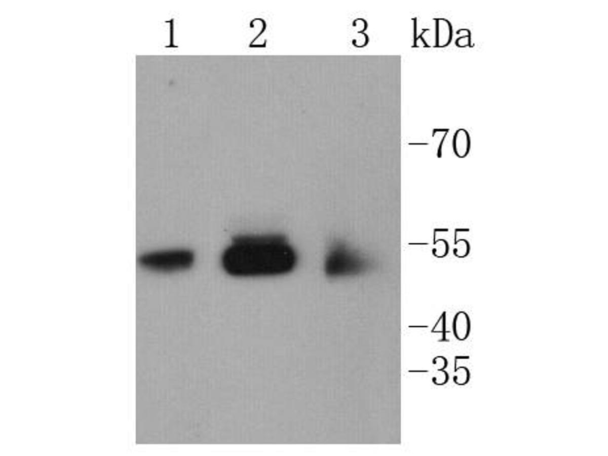 Western blot analysis of CaMKⅡ on different lysates. Proteins were transferred to a PVDF membrane and blocked with 5% BSA in PBS for 1 hour at room temperature. The primary antibody (ET1608-47, 1/500) was used in 5% BSA at room temperature for 2 hours. Goat Anti-Rabbit IgG - HRP Secondary Antibody (HA1001) at 1:5,000 dilution was used for 1 hour at room temperature.<br /> Positive control: <br /> Lane 1: SH-SY-5Y cell lysate<br /> Lane 2: PC-12 cell lysate<br /> Lane 3: SHG-44 cell lysate
