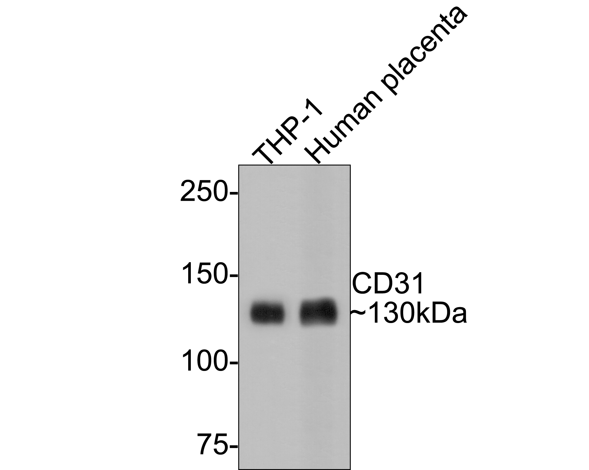 Western blot analysis of CD31 on different lysates. Proteins were transferred to a PVDF membrane and blocked with 5% BSA in PBS for 1 hour at room temperature. The primary antibody (ET1608-48, 1/500) was used in 5% BSA at room temperature for 2 hours. Goat Anti-Rabbit IgG - HRP Secondary Antibody (HA1001) at 1:5,000 dilution was used for 1 hour at room temperature.<br /> Positive control: <br /> Lane 1: THP-1 cell lysate<br /> Lane 2: human placenta tissue lysate