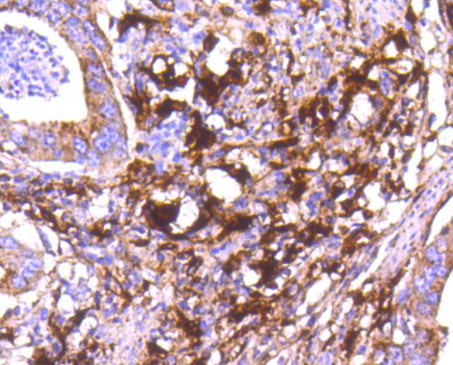 Immunohistochemical analysis of paraffin-embedded human stomach carcinoma tissue using anti-Cathepsin D antibody. The section was pre-treated using heat mediated antigen retrieval with Tris-EDTA buffer (pH 8.0-8.4) for 20 minutes.The tissues were blocked in 5% BSA for 30 minutes at room temperature, washed with ddH2O and PBS, and then probed with the primary antibody (ET1608-49, 1/50) for 30 minutes at room temperature. The detection was performed using an HRP conjugated compact polymer system. DAB was used as the chromogen. Tissues were counterstained with hematoxylin and mounted with DPX.