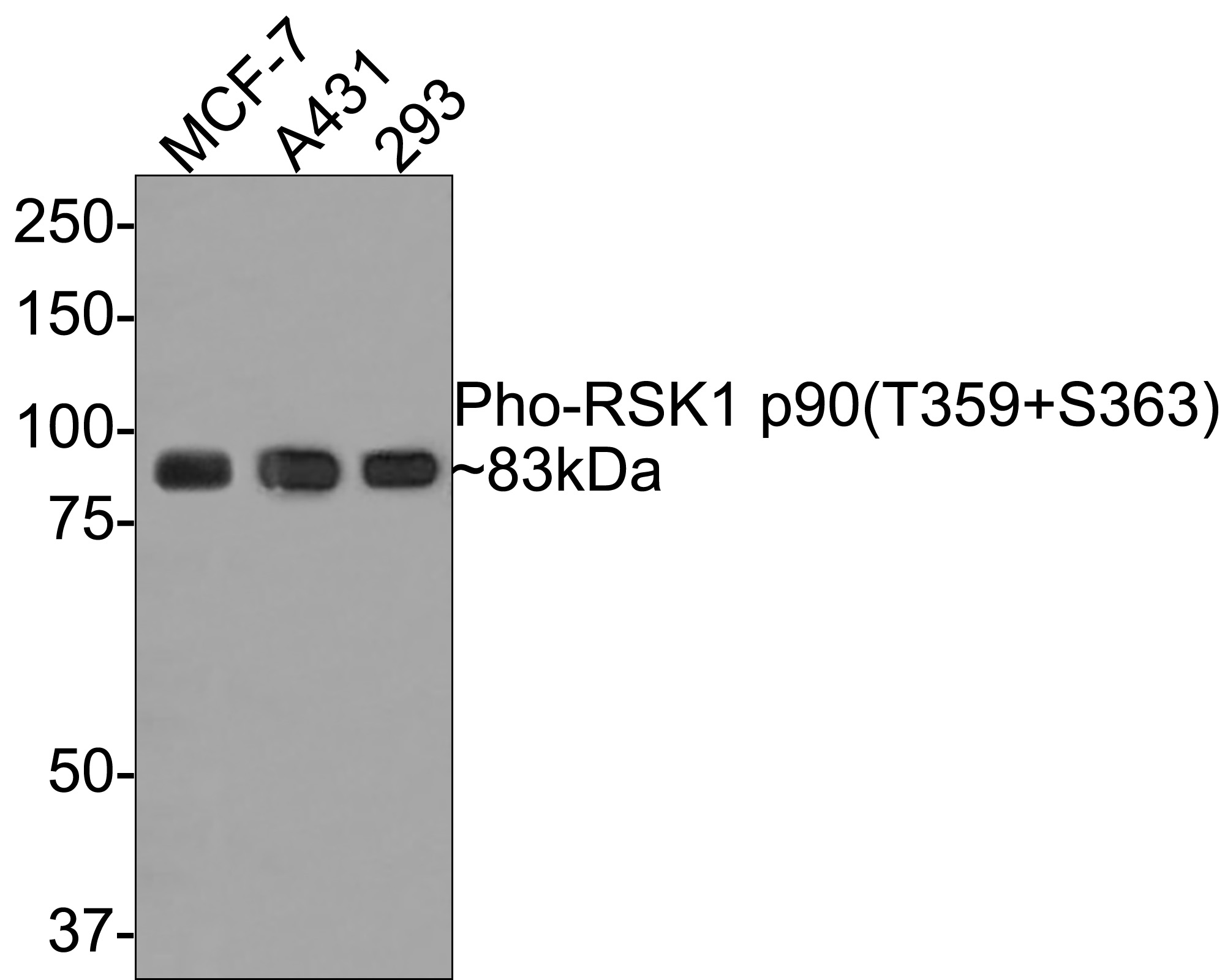 Western blot analysis of Phospho-RSK1 p90(T359+S363) on different lysates using anti-Phospho-RSK1 p90(T359+S363) antibody at 1/1,000 dilution.<br />  Positive control: <br />   Lane 1: A431 <br />   Lane 2: 293 <br />   Lane 3: MCF-7