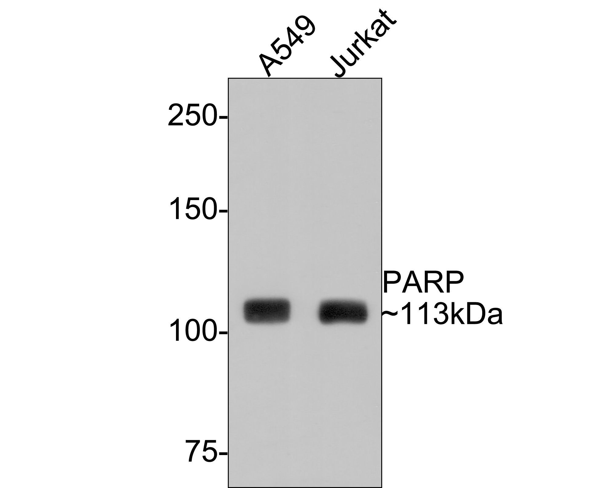 Western blot analysis of PARP on different lysates. Proteins were transferred to a PVDF membrane and blocked with 5% BSA in PBS for 1 hour at room temperature. The primary antibody (ET1608-56, 1/500) was used in 5% BSA at room temperature for 2 hours. Goat Anti-Rabbit IgG - HRP Secondary Antibody (HA1001) at 1:5,000 dilution was used for 1 hour at room temperature.<br />  Positive control: <br />  Lane 1: A549 cell lysate<br />  Lane 2: Jurkat cell lysate<br />  Lane 3: Hela cell lysate