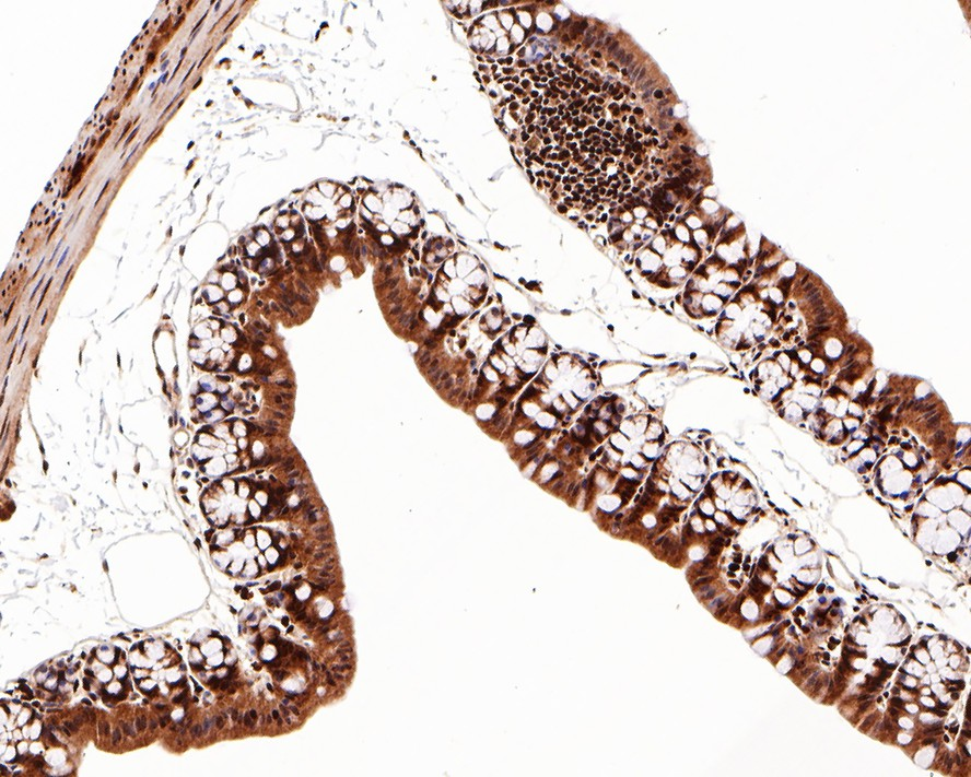 Flow cytometric analysis of PARP was done on Hela cells. The cells were fixed, permeabilized and stained with the primary antibody (ET1608-56, 1/50) (red). After incubation of the primary antibody at room temperature for an hour, the cells were stained with a Alexa Fluor 488-conjugated Goat anti-Rabbit IgG Secondary antibody at 1/1000 dilution for 30 minutes.Unlabelled sample was used as a control (cells without incubation with primary antibody; black).