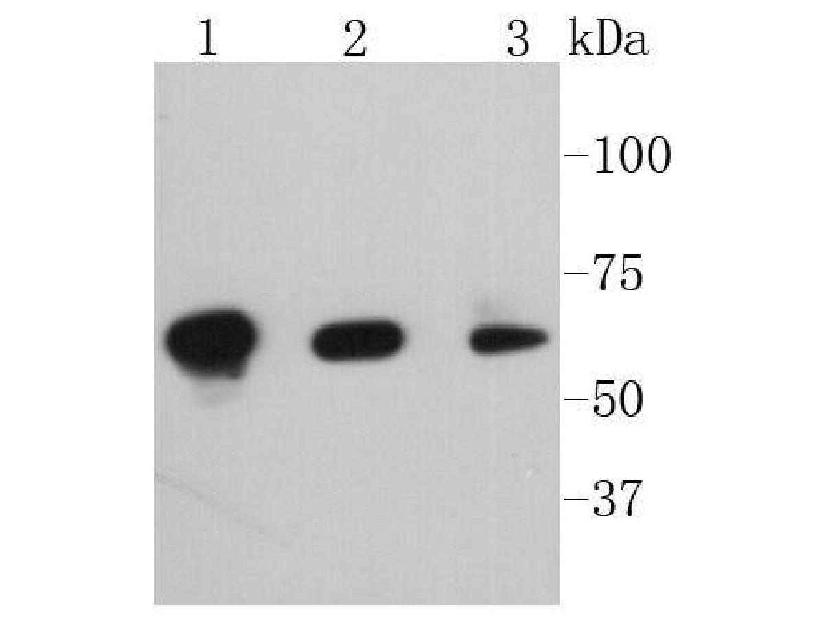 Western blot analysis of Phospho-PAK1(S144)+PAK2(S141)+PAK3(S139) on different lysates. Proteins were transferred to a PVDF membrane and blocked with 5% BSA in PBS for 1 hour at room temperature. The primary antibody (ET1608-58, 1/500) was used in 5% BSA at room temperature for 2 hours. Goat Anti-Rabbit IgG - HRP Secondary Antibody (HA1001) at 1:5,000 dilution was used for 1 hour at room temperature.<br /> Positive control: <br /> Lane 1: Hela cell lysate<br /> Lane 2: NIH/3T3 cell lysate<br /> Lane 2: SH-SY5Y cell lysate