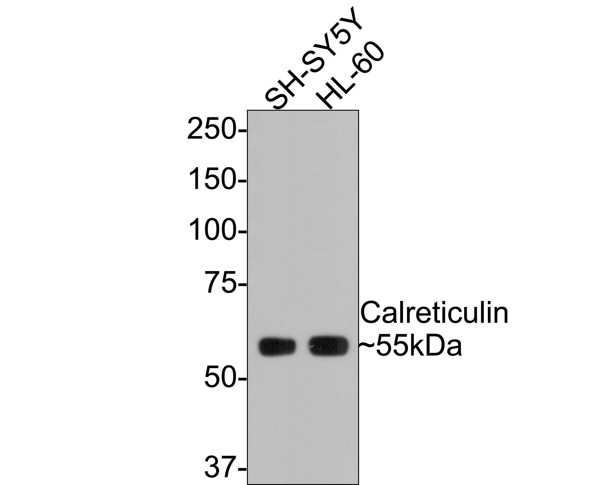 Western blot analysis of Calreticulin on different lysates. Proteins were transferred to a PVDF membrane and blocked with 5% BSA in PBS for 1 hour at room temperature. The primary antibody (ET1608-60, 1/500) was used in 5% BSA at room temperature for 2 hours. Goat Anti-Rabbit IgG - HRP Secondary Antibody (HA1001) at 1:5,000 dilution was used for 1 hour at room temperature.<br /> Positive control: <br /> Lane 1: SH-SY5Y cell lysate<br /> Lane 2: HL-60 cell lysate