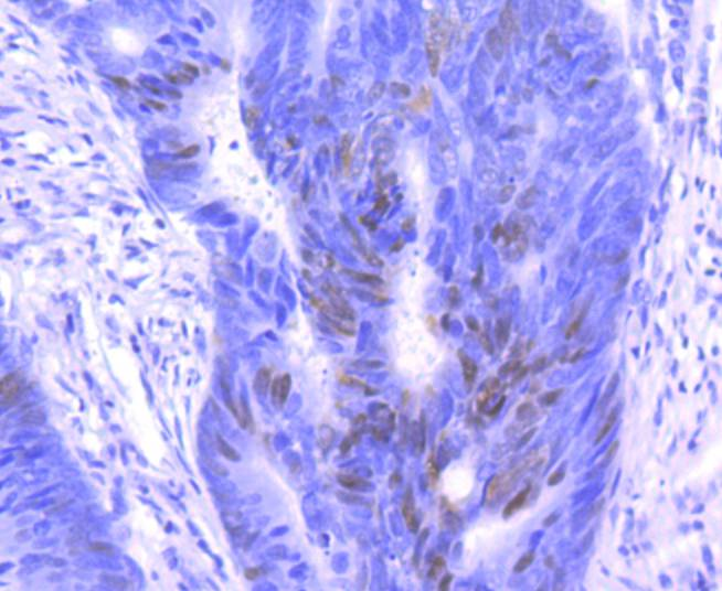 Immunohistochemical analysis of paraffin-embedded human breast carcinoma tissue using anti-p27 KIP 1 antibody. The section was pre-treated using heat mediated antigen retrieval with sodium citrate buffer (pH 6.0) for 20 minutes. The tissues were blocked in 5% BSA for 30 minutes at room temperature, washed with ddH2O and PBS, and then probed with the primary antibody (ET1608-61, 1/50)  for 30 minutes at room temperature. The detection was performed using an HRP conjugated compact polymer system. DAB was used as the chromogen. Tissues were counterstained with hematoxylin and mounted with DPX.