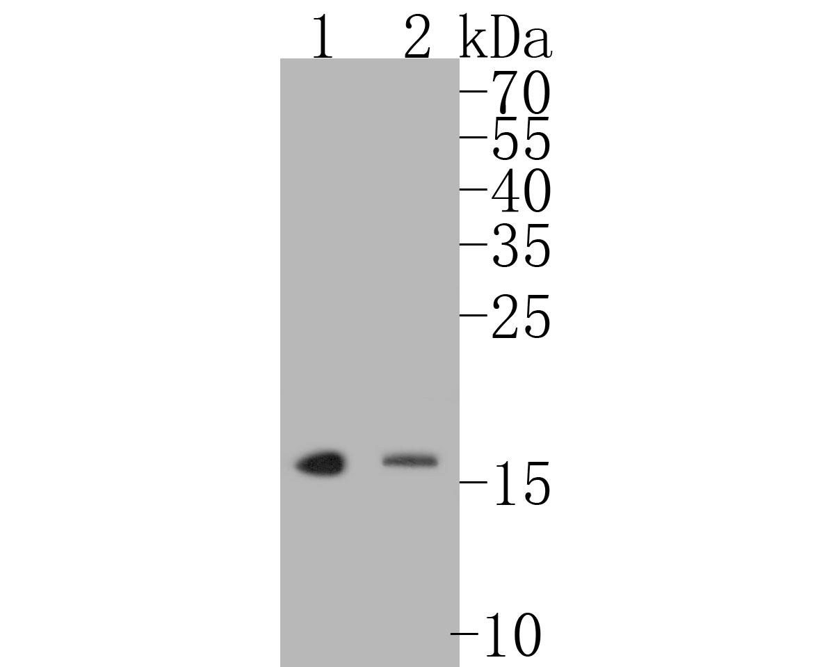 Western blot analysis of p16INK4A on different lysates. Proteins were transferred to a PVDF membrane and blocked with 5% BSA in PBS for 1 hour at room temperature. The primary antibody (ET1608-62, 1/500) was used in 5% BSA at room temperature for 2 hours. Goat Anti-Rabbit IgG - HRP Secondary Antibody (HA1001) at 1:5,000 dilution was used for 1 hour at room temperature. Positive control:  Lane 1: 293 cell lysate Lane 2: SiHa cell lysate