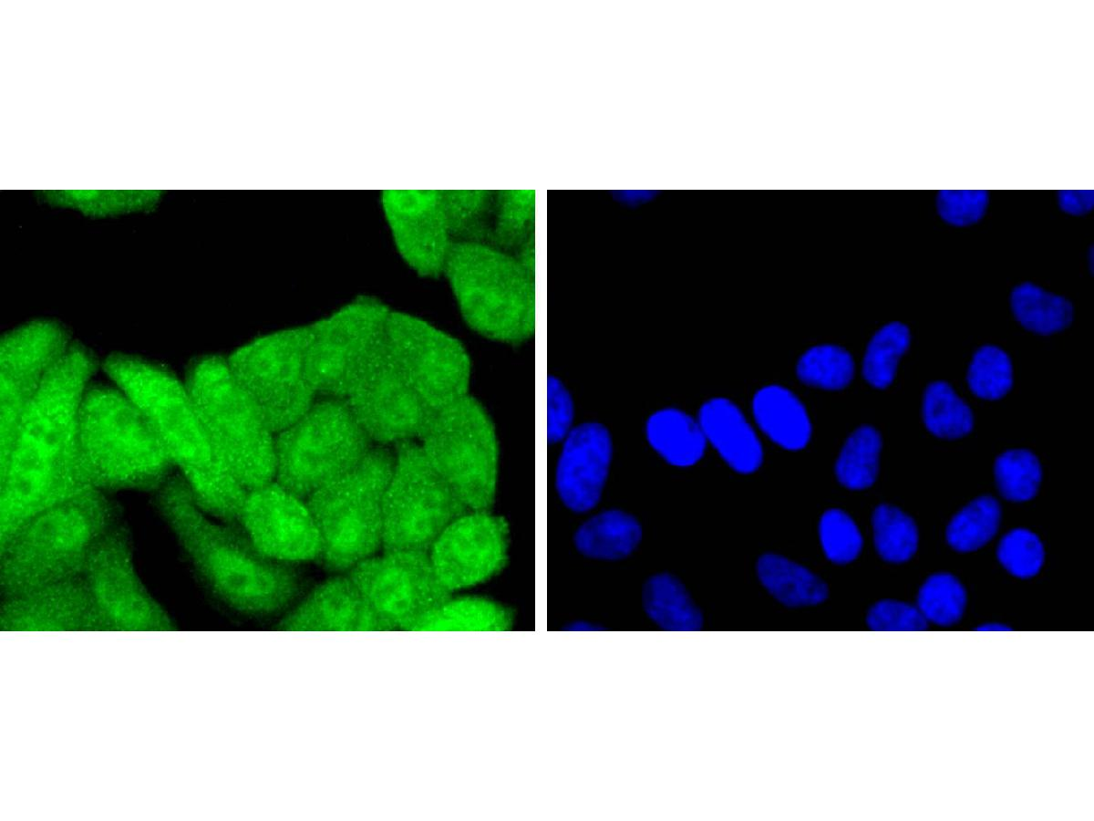 ICC staining of p16INK4A in HepG2 cells (green). Formalin fixed cells were permeabilized with 0.1% Triton X-100 in TBS for 10 minutes at room temperature and blocked with 1% Blocker BSA for 15 minutes at room temperature. Cells were probed with the primary antibody (ET1608-62, 1/50) for 1 hour at room temperature, washed with PBS. Alexa Fluor®488 Goat anti-Rabbit IgG was used as the secondary antibody at 1/1,000 dilution. The nuclear counter stain is DAPI (blue).