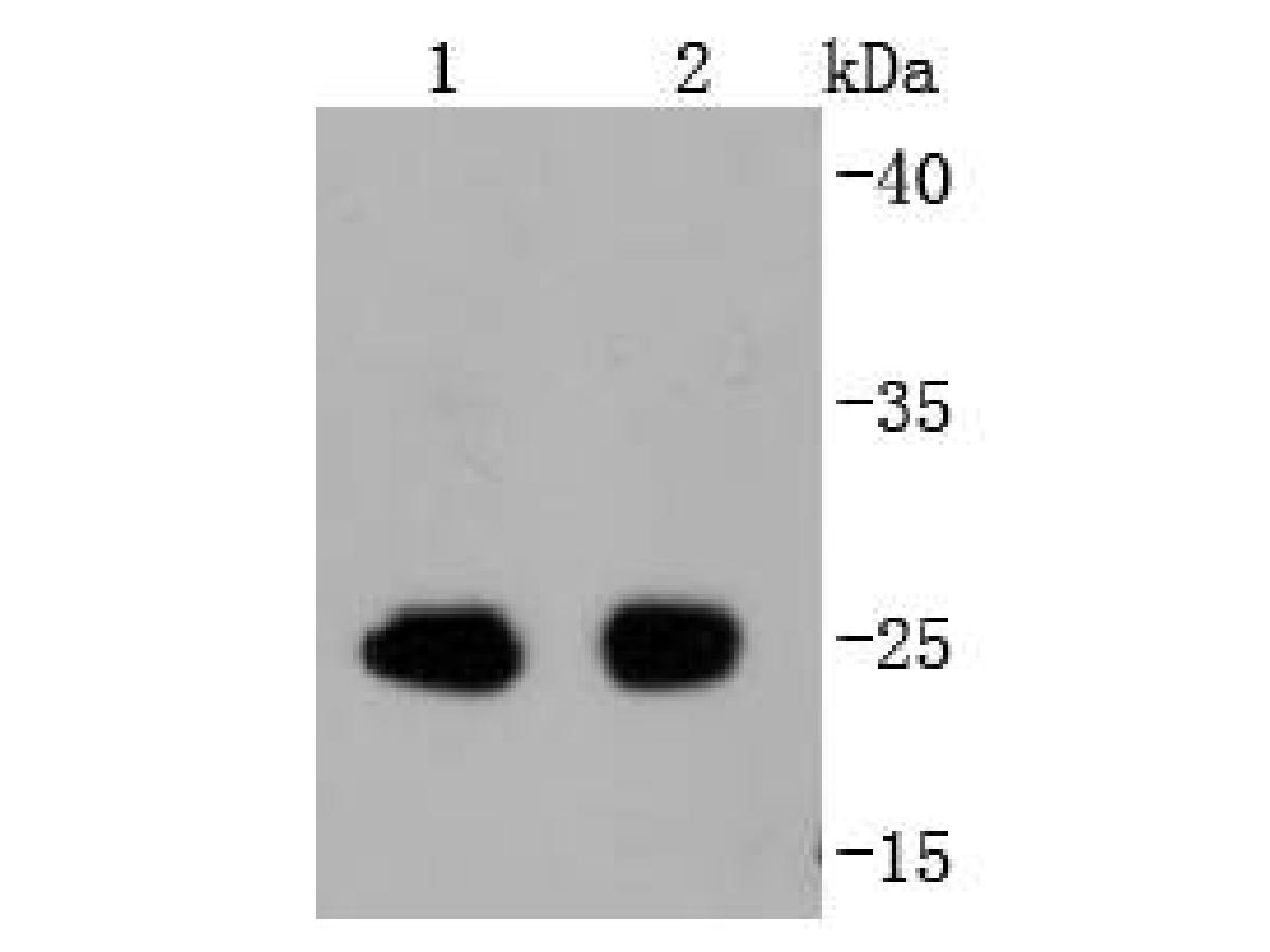 Western blot analysis of Phospho-eIF4E (S209) on different lysates. Proteins were transferred to a PVDF membrane and blocked with 5% BSA in PBS for 1 hour at room temperature. The primary antibody (ET1608-66, 1/500) was used in 5% BSA at room temperature for 2 hours. Goat Anti-Rabbit IgG - HRP Secondary Antibody (HA1001) at 1:5,000 dilution was used for 1 hour at room temperature.<br />  Positive control: <br />  Lane 1: mouse spleen tissue lysate<br />  Lane 2: rat spleen tissue lysate