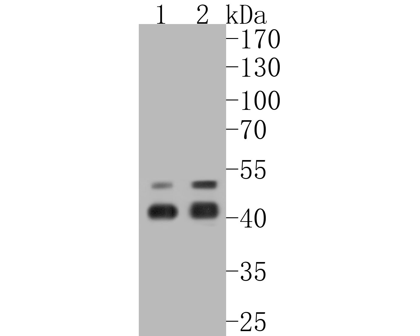 Western blot analysis of Caspase-1 on different lysates. Proteins were transferred to a PVDF membrane and blocked with 5% BSA in PBS for 1 hour at room temperature. The primary antibody (ET1608-69, 1/500) was used in 5% BSA at room temperature for 2 hours. Goat Anti-Rabbit IgG - HRP Secondary Antibody (HA1001) at 1:5,000 dilution was used for 1 hour at room temperature.<br /> Positive control: <br /> Lane 1: THP-1 cell lysate<br /> Lane 2: Jurkat cell lysate