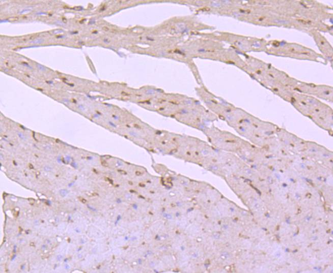 Immunohistochemical analysis of paraffin-embedded mouse heart tissue using anti-PI 3 Kinase p85 alpha antibody. Counter stained with hematoxylin.