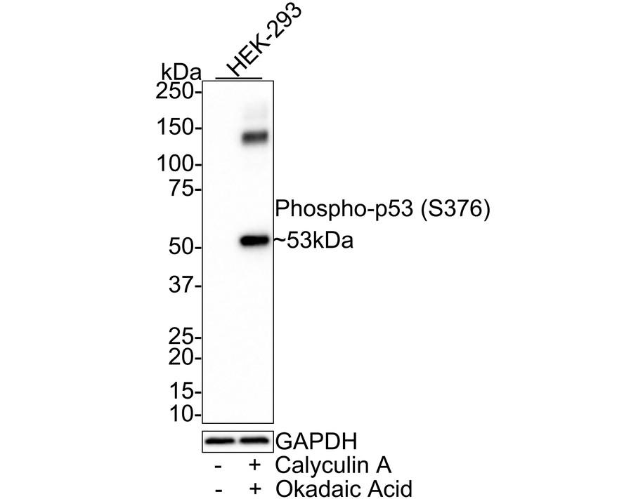 Western blot analysis of Phospho-p53(S376) on human skin lysates using anti-Phospho-p53(S376) antibody at 1/1,000 dilution.