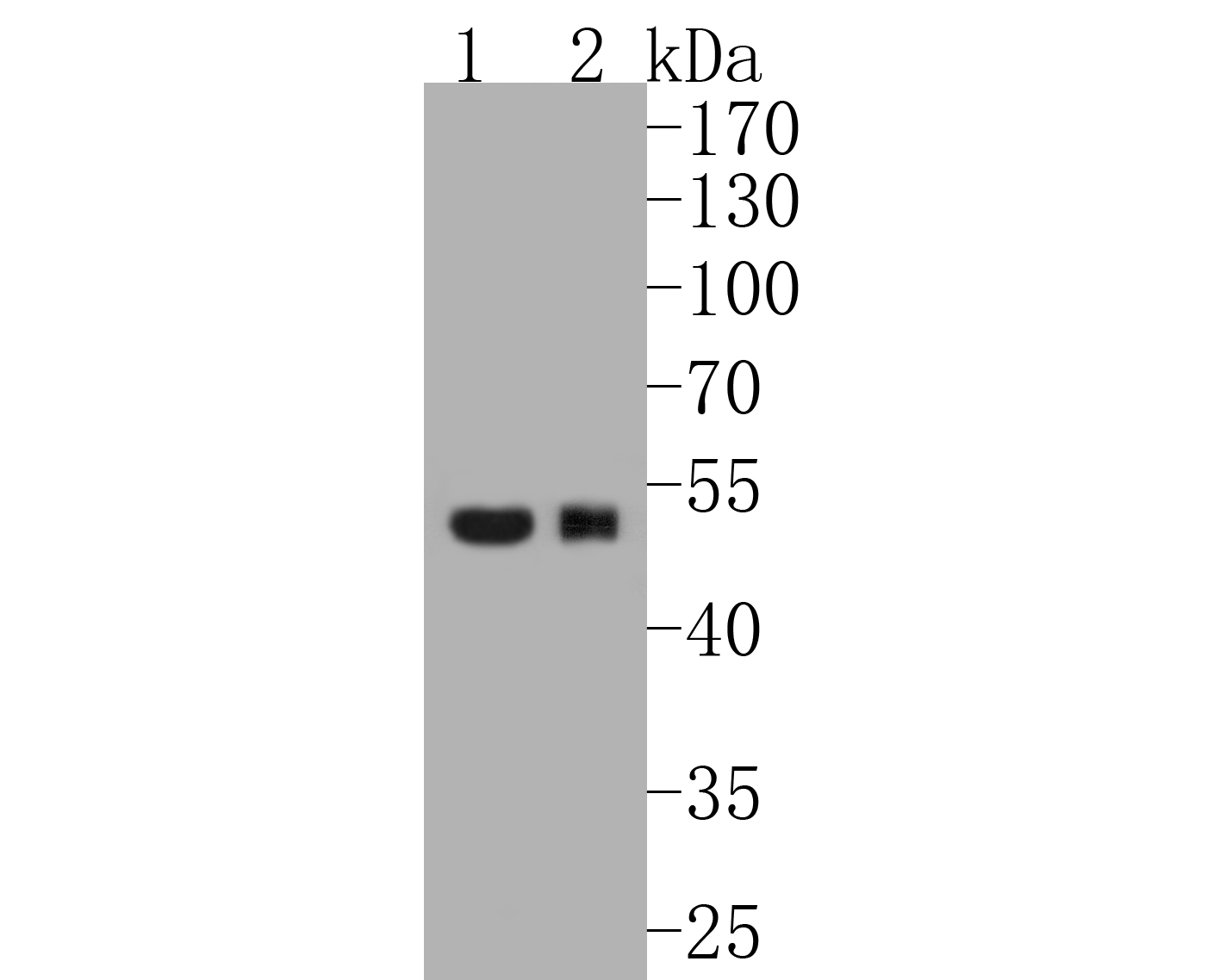 Western blot analysis of Phospho-GATA3 (S308) on different lysates. Proteins were transferred to a PVDF membrane and blocked with 5% BSA in PBS for 1 hour at room temperature. The primary antibody (ET1609-17, 1/500) was used in 5% BSA at room temperature for 2 hours. Goat Anti-Rabbit IgG - HRP Secondary Antibody (HA1001) at 1:5,000 dilution was used for 1 hour at room temperature.<br />  Positive control: <br />  Lane 1: human skin tissue lysate<br />  Lane 2: Jurkat cell lysate