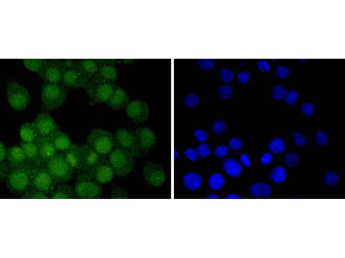 ICC staining Androgen receptor in N2A cells (green). The nuclear counter stain is DAPI (blue). Cells were fixed in paraformaldehyde, permeabilised with 0.25% Triton X100/PBS.