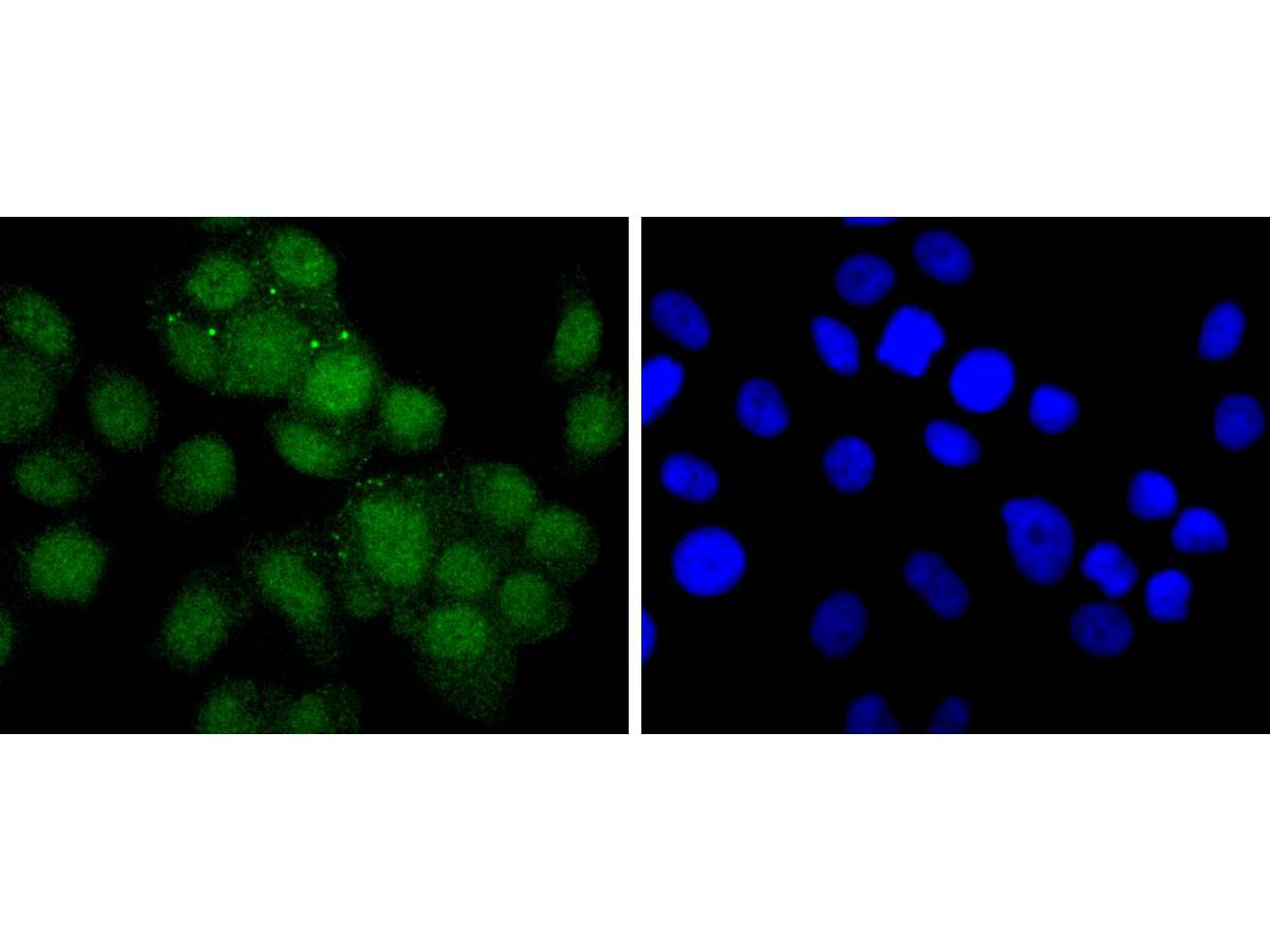 ICC staining Androgen receptor in MCF-7 cells (green). The nuclear counter stain is DAPI (blue). Cells were fixed in paraformaldehyde, permeabilised with 0.25% Triton X100/PBS.