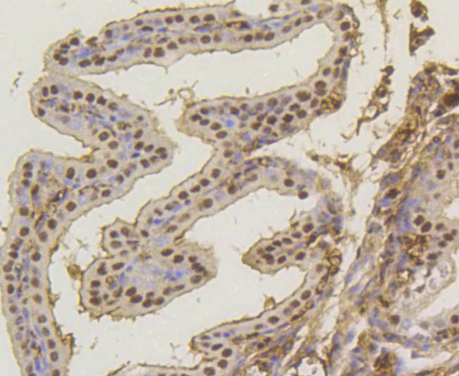 Immunohistochemical analysis of paraffin-embedded mouse placenta tissue using anti-ASH2L antibody. Counter stained with hematoxylin.