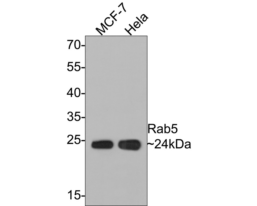 Western blot analysis of Rab5 on different lysates. Proteins were transferred to a PVDF membrane and blocked with 5% BSA in PBS for 1 hour at room temperature. The primary antibody (ET1609-27, 1/500) was used in 5% BSA at room temperature for 2 hours. Goat Anti-Rabbit IgG - HRP Secondary Antibody (HA1001) at 1:5,000 dilution was used for 1 hour at room temperature.<br />  Positive control: <br />  Lane 1: Hela cell lysate<br />  Lane 2: MCF-7 cell lysate