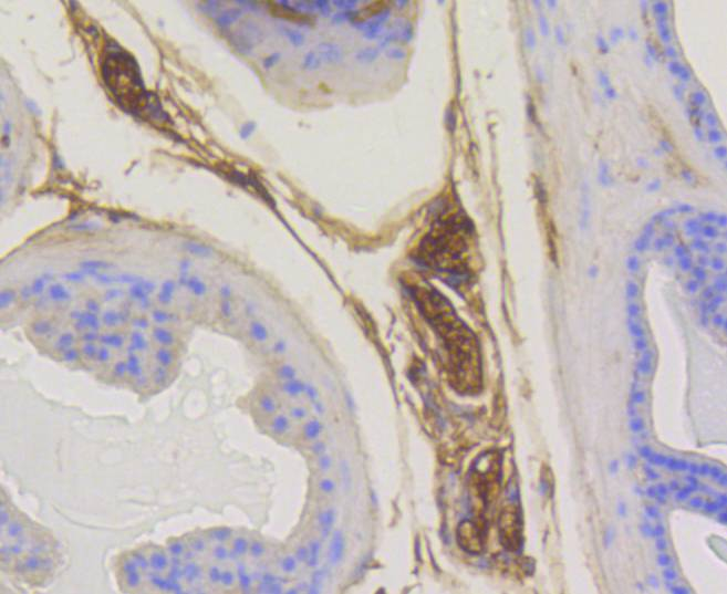 Immunohistochemical analysis of paraffin-embedded mouse prostate tissue using anti-Rab5 antibody. Counter stained with hematoxylin.