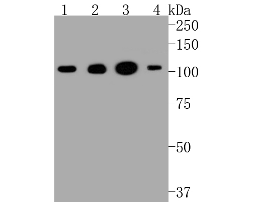 Western blot analysis of Hexokinase 1 on different lysates. Proteins were transferred to a PVDF membrane and blocked with 5% BSA in PBS for 1 hour at room temperature. The primary antibody (ET1609-28, 1/500) was used in 5% BSA at room temperature for 2 hours. Goat Anti-Rabbit IgG - HRP Secondary Antibody (HA1001) at 1:5,000 dilution was used for 1 hour at room temperature. Positive control:  Lane 1: Hela cell lysate Lane 2: 293 cell lysate Lane 1: MCF-7 cell lysate Lane 2: HepG2 cell lysate