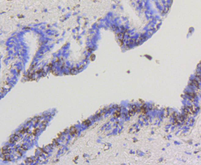 Immunohistochemical analysis of paraffin-embedded human breast carcinoma tissue using anti-Hexokinase 1 antibody. The section was pre-treated using heat mediated antigen retrieval with Tris-EDTA buffer (pH 8.0-8.4) for 20 minutes.The tissues were blocked in 5% BSA for 30 minutes at room temperature, washed with ddH2O and PBS, and then probed with the primary antibody (ET1609-28, 1/50) for 30 minutes at room temperature. The detection was performed using an HRP conjugated compact polymer system. DAB was used as the chromogen. Tissues were counterstained with hematoxylin and mounted with DPX.