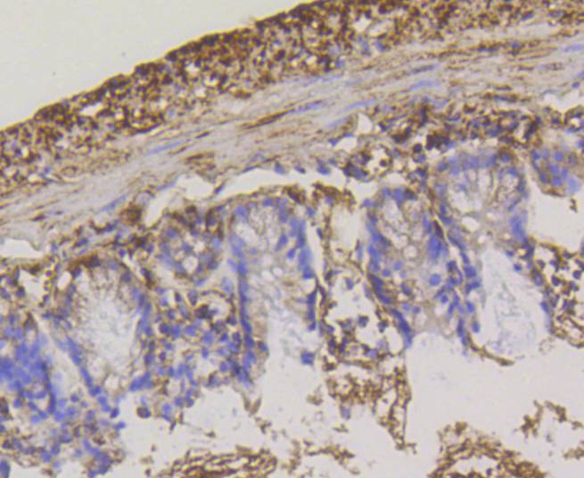 Immunohistochemical analysis of paraffin-embedded mouse colon tissue using anti-Hexokinase 1 antibody. The section was pre-treated using heat mediated antigen retrieval with Tris-EDTA buffer (pH 8.0-8.4) for 20 minutes.The tissues were blocked in 5% BSA for 30 minutes at room temperature, washed with ddH2O and PBS, and then probed with the primary antibody (ET1609-28, 1/50) for 30 minutes at room temperature. The detection was performed using an HRP conjugated compact polymer system. DAB was used as the chromogen. Tissues were counterstained with hematoxylin and mounted with DPX.