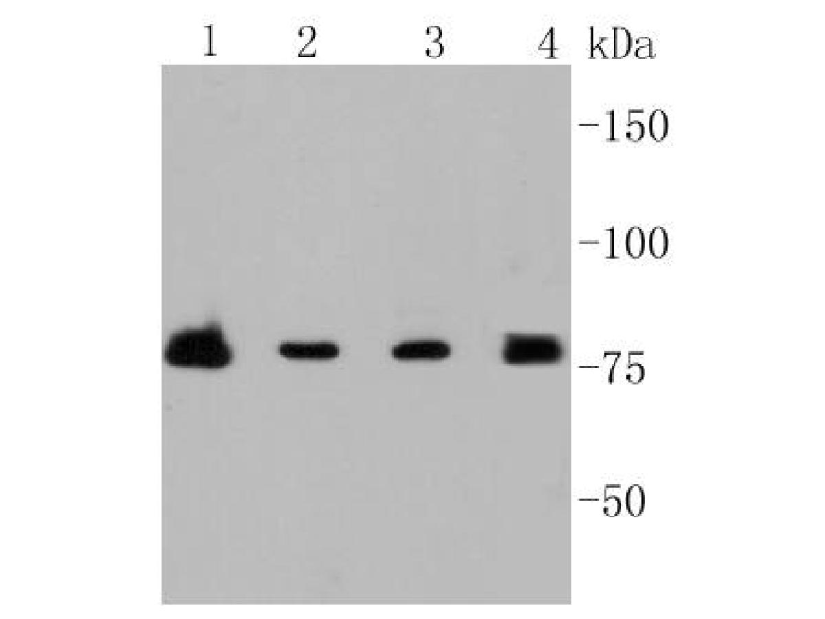 Western blot analysis of PI 3 Kinase p85 beta on different lysates. Proteins were transferred to a PVDF membrane and blocked with 5% BSA in PBS for 1 hour at room temperature. The primary antibody (ET1609-30, 1/500) was used in 5% BSA at room temperature for 2 hours. Goat Anti-Rabbit IgG - HRP Secondary Antibody (HA1001) at 1:5,000 dilution was used for 1 hour at room temperature.<br />  Positive control: <br />  Lane 1: Raji cell lysate<br />  Lane 2: Hela cell lysate<br />  Lane 1: MCF-7 cell lysate<br />  Lane 2: U937 cell lysate