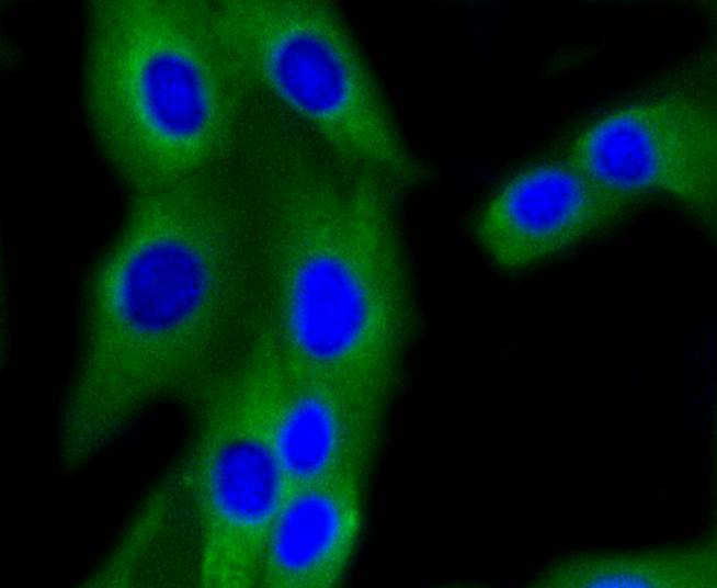 Immunohistochemical analysis of paraffin-embedded rat testis tissue using anti-PI 3 Kinase p85 beta antibody. The section was pre-treated using heat mediated antigen retrieval with Tris-EDTA buffer (pH 8.0-8.4) for 20 minutes.The tissues were blocked in 5% BSA for 30 minutes at room temperature, washed with ddH2O and PBS, and then probed with the primary antibody (ET1609-30, 1/50) for 30 minutes at room temperature. The detection was performed using an HRP conjugated compact polymer system. DAB was used as the chromogen. Tissues were counterstained with hematoxylin and mounted with DPX.