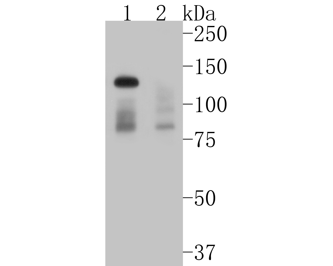 Western blot analysis of Dnmt3a on different lysates. Proteins were transferred to a PVDF membrane and blocked with 5% BSA in PBS for 1 hour at room temperature. The primary antibody (ET1609-31, 1/500) was used in 5% BSA at room temperature for 2 hours. Goat Anti-Rabbit IgG - HRP Secondary Antibody (HA1001) at 1:5,000 dilution was used for 1 hour at room temperature.<br /> Positive control: <br /> Lane 1: SH-SY5Y cell lysate<br /> Lane 2: mouse placenta tissue lysate