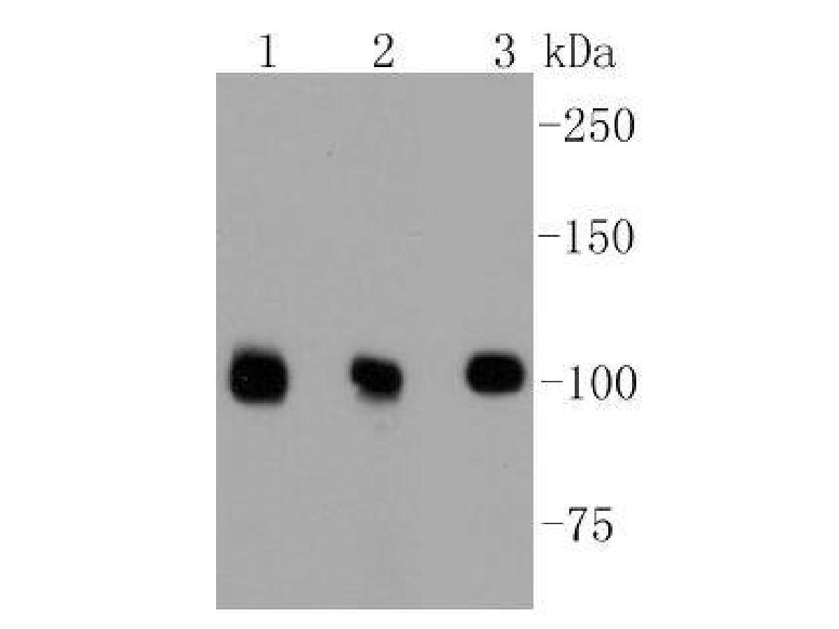 Western blot analysis of DGCR8 on different lysates using anti-DGCR8 antibody at 1/1,000 dilution.<br />  Positive control: <br />  Lane 1: Hela <br />  Lane 2: PC12 <br />  Lane 3: NIH/3T3