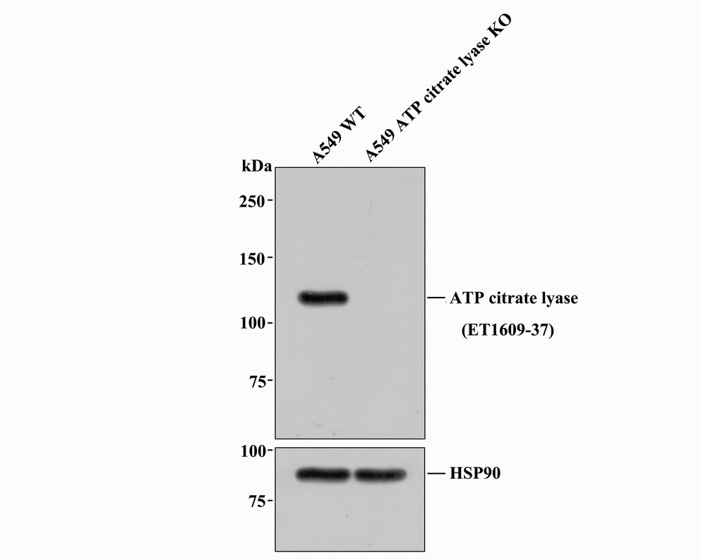 Western blot analysis of ATP citrate lyase on different lysates. Proteins were transferred to a PVDF membrane and blocked with 5% BSA in PBS for 1 hour at room temperature. The primary antibody (ET1609-37, 1/500) was used in 5% BSA at room temperature for 2 hours. Goat Anti-Rabbit IgG - HRP Secondary Antibody (HA1001) at 1:5,000 dilution was used for 1 hour at room temperature.<br />  Positive control: <br />  Lane 1: A549 cell lysate<br />  Lane 2: CRC cell lysate<br />  Lane 3: Hela cell lysate
