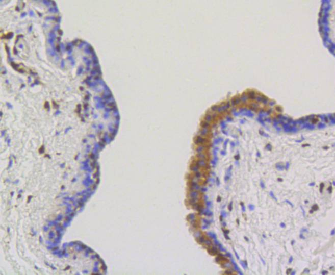 Immunohistochemical analysis of paraffin-embedded mouse thyroid tissue using anti-ATP citrate lyase antibody. The section was pre-treated using heat mediated antigen retrieval with Tris-EDTA buffer (pH 8.0-8.4) for 20 minutes.The tissues were blocked in 5% BSA for 30 minutes at room temperature, washed with ddH2O and PBS, and then probed with the primary antibody (ET1609-37, 1/50) for 30 minutes at room temperature. The detection was performed using an HRP conjugated compact polymer system. DAB was used as the chromogen. Tissues were counterstained with hematoxylin and mounted with DPX.