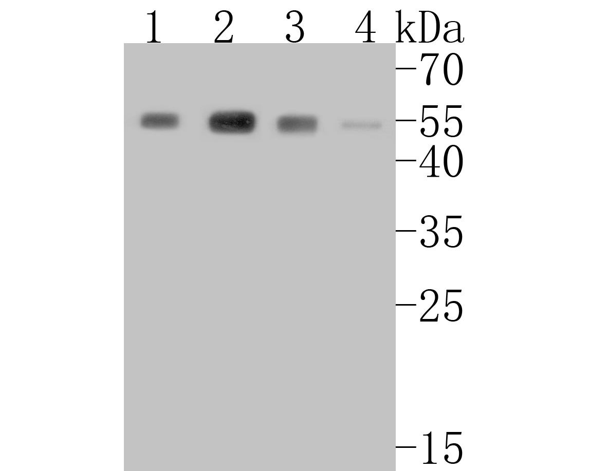 Western blot analysis of beta Arrestin 1 on different lysates. Proteins were transferred to a PVDF membrane and blocked with 5% BSA in PBS for 1 hour at room temperature. The primary antibody (ET1609-38, 1/500) was used in 5% BSA at room temperature for 2 hours. Goat Anti-Rabbit IgG - HRP Secondary Antibody (HA1001) at 1:5,000 dilution was used for 1 hour at room temperature.<br /> Positive control: <br /> Lane 1: K562 cell lysate<br /> Lane 2: SK-Br-3 cell lysate<br /> Lane 3: THP-1 cell lysate<br /> Lane 4: U937 cell lysate