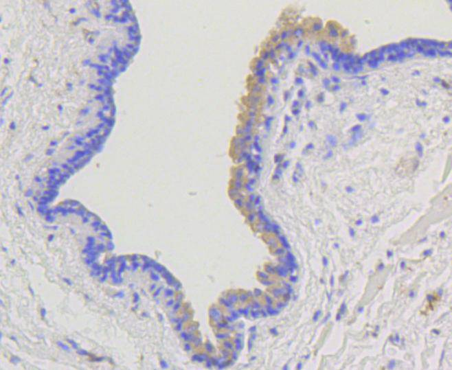 Immunohistochemical analysis of paraffin-embedded human breast carcinoma tissue using anti-beta Arrestin 1 antibody. The section was pre-treated using heat mediated antigen retrieval with Tris-EDTA buffer (pH 8.0-8.4) for 20 minutes.The tissues were blocked in 5% BSA for 30 minutes at room temperature, washed with ddH2O and PBS, and then probed with the primary antibody (ET1609-38, 1/50) for 30 minutes at room temperature. The detection was performed using an HRP conjugated compact polymer system. DAB was used as the chromogen. Tissues were counterstained with hematoxylin and mounted with DPX.