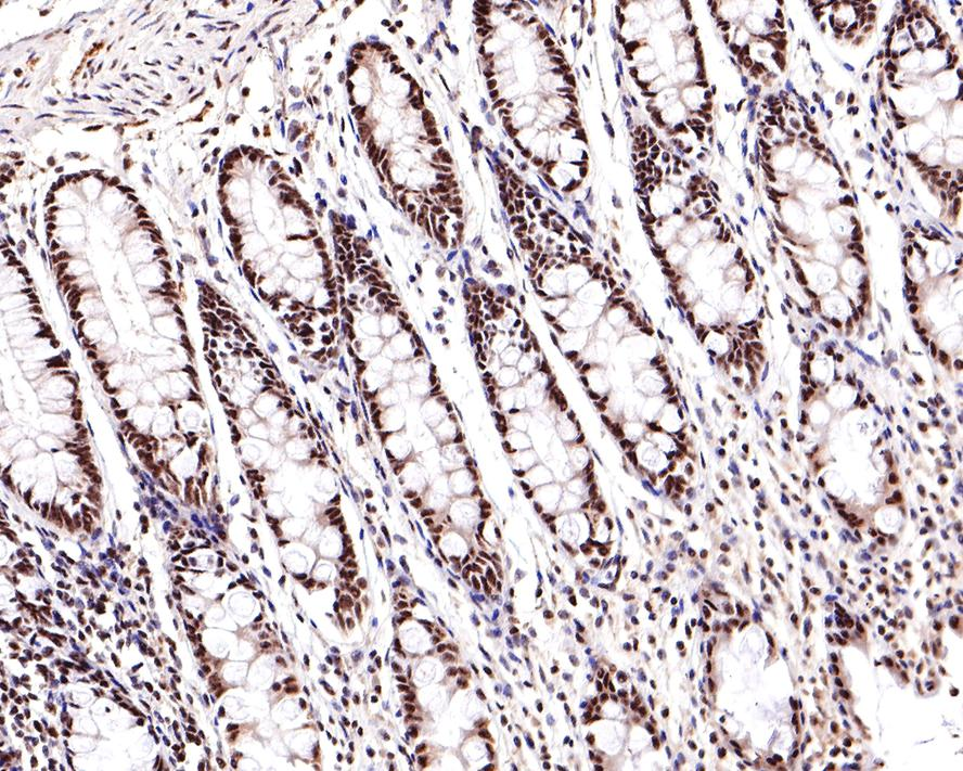 Immunohistochemical analysis of paraffin-embedded human uterus tissue using anti-Phospho-JNK1/2/3(T183+T183+T221) antibody. The section was pre-treated using heat mediated antigen retrieval with Tris-EDTA buffer (pH 8.0-8.4) for 20 minutes.The tissues were blocked in 5% BSA for 30 minutes at room temperature, washed with ddH2O and PBS, and then probed with the primary antibody (ET1609-42, 1/50) for 30 minutes at room temperature. The detection was performed using an HRP conjugated compact polymer system. DAB was used as the chromogen. Tissues were counterstained with hematoxylin and mounted with DPX.