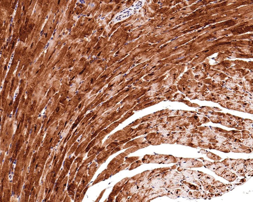 Flow cytometric analysis of Phospho-JNK1/2/3(T183+T183+T221) was done on Hela cells. The cells were fixed, permeabilized and stained with the primary antibody (ET1609-42, 1/100) (blue). After incubation of the primary antibody at room temperature for an hour, the cells were stained with a Alexa Fluor 488-conjugated Goat anti-Rabbit IgG Secondary antibody at 1/1000 dilution for 30 minutes.Unlabelled sample was used as a control (cells without incubation with primary antibody; red).