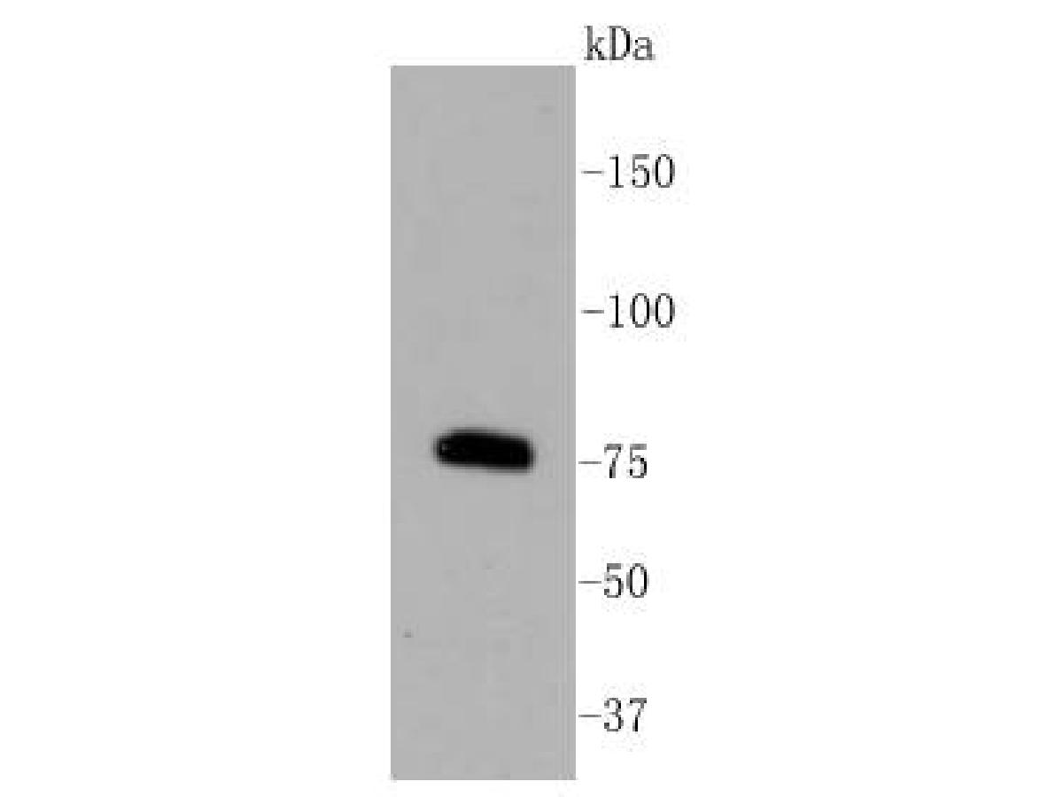 Western blot analysis of PKC beta 2 on Raji cell lysates. Proteins were transferred to a PVDF membrane and blocked with 5% BSA in PBS for 1 hour at room temperature. The primary antibody (ET1609-44, 1/500) was used in 5% BSA at room temperature for 2 hours. Goat Anti-Rabbit IgG - HRP Secondary Antibody (HA1001) at 1:5,000 dilution was used for 1 hour at room temperature.