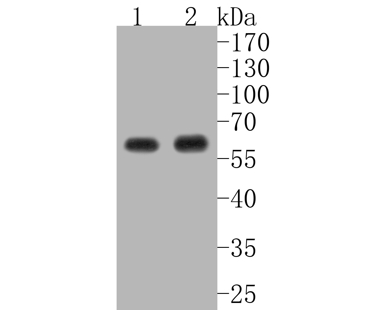 Western blot analysis of AKT1 on different lysates. Proteins were transferred to a PVDF membrane and blocked with 5% BSA in PBS for 1 hour at room temperature. The primary antibody (ET1609-47, 1/500) was used in 5% BSA at room temperature for 2 hours. Goat Anti-Rabbit IgG - HRP Secondary Antibody (HA1001) at 1:5,000 dilution was used for 1 hour at room temperature.<br /> Positive control: <br /> Lane 1: BT-20 cell lysate<br /> Lane 2: MCF-7 cell lysate