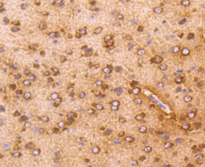 Immunohistochemical analysis of paraffin-embedded mouse prostate tissue using anti-AKT1 antibody. The section was pre-treated using heat mediated antigen retrieval with Tris-EDTA buffer (pH 8.0-8.4) for 20 minutes.The tissues were blocked in 5% BSA for 30 minutes at room temperature, washed with ddH2O and PBS, and then probed with the primary antibody (ET1609-47, 1/50) for 30 minutes at room temperature. The detection was performed using an HRP conjugated compact polymer system. DAB was used as the chromogen. Tissues were counterstained with hematoxylin and mounted with DPX.