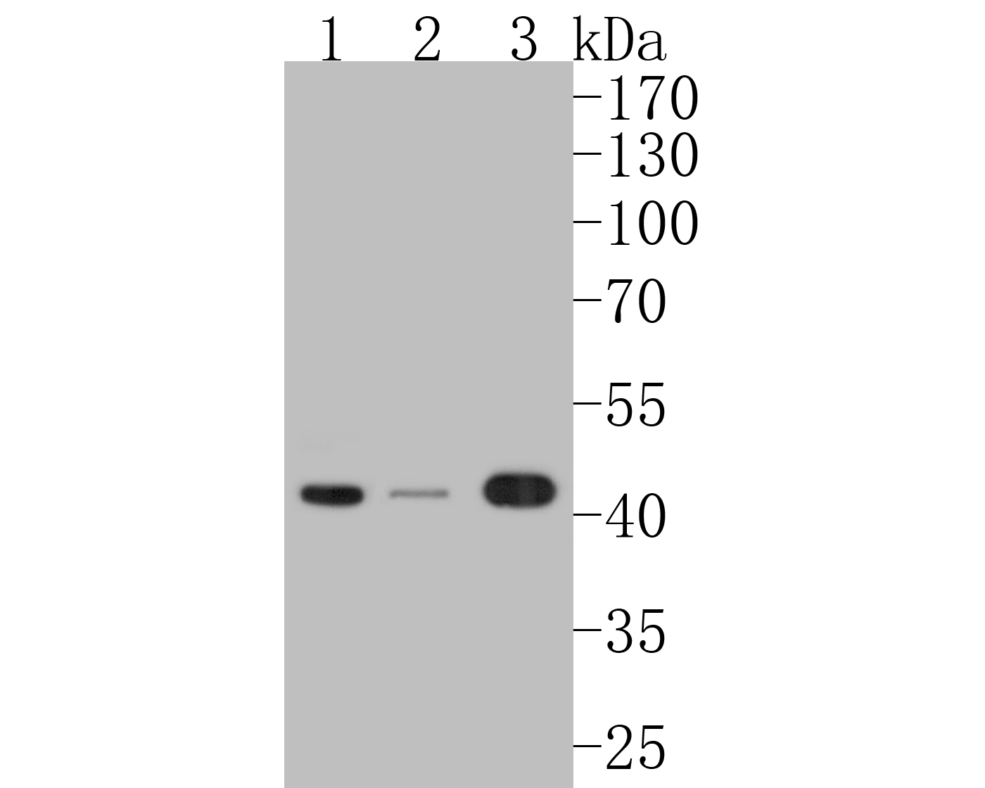 Western blot analysis of Phospho-MEK1(S218/S222) on different lysates. Proteins were transferred to a PVDF membrane and blocked with 5% BSA in PBS for 1 hour at room temperature. The primary antibody (ET1609-50, 1/500) was used in 5% BSA at room temperature for 2 hours. Goat Anti-Rabbit IgG - HRP Secondary Antibody (HA1001) at 1:5,000 dilution was used for 1 hour at room temperature.<br />  Positive control: <br />  Lane 1: Hela cell lysate<br />  Lane 2: A431 cell lysate<br />  Lane 2: 293T cell lysate