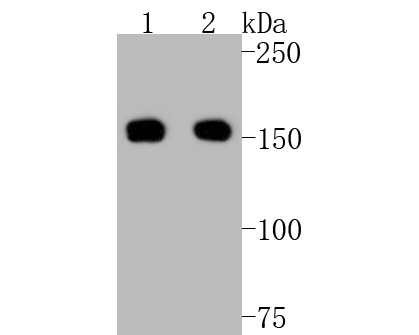 Western blot analysis of ROCK1 on different lysates. Proteins were transferred to a PVDF membrane and blocked with 5% BSA in PBS for 1 hour at room temperature. The primary antibody (ET1609-53, 1/500) was used in 5% BSA at room temperature for 2 hours. Goat Anti-Rabbit IgG - HRP Secondary Antibody (HA1001) at 1:5,000 dilution was used for 1 hour at room temperature.<br /> Positive control: <br /> Lane 1: A431 cell lysate<br /> Lane 2: NIH/3T3 cell lysate