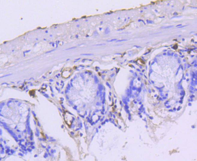 Immunohistochemical analysis of paraffin-embedded mouse small intestine tissue using anti-Cytokeratin 15 antibody. The section was pre-treated using heat mediated antigen retrieval with Tris-EDTA buffer (pH 8.0-8.4) for 20 minutes.The tissues were blocked in 5% BSA for 30 minutes at room temperature, washed with ddH2O and PBS, and then probed with the primary antibody (ET1609-54, 1/50) for 30 minutes at room temperature. The detection was performed using an HRP conjugated compact polymer system. DAB was used as the chromogen. Tissues were counterstained with hematoxylin and mounted with DPX.