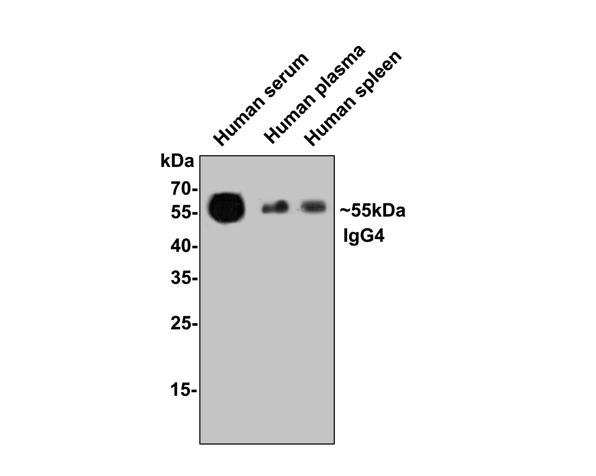 Western blot analysis of IgG4 on human plasma lysates. Proteins were transferred to a PVDF membrane and blocked with 5% BSA in PBS for 1 hour at room temperature. The primary antibody (ET1609-56, 1/500) was used in 5% BSA at room temperature for 2 hours. Goat Anti-Rabbit IgG - HRP Secondary Antibody (HA1001) at 1:5,000 dilution was used for 1 hour at room temperature.
