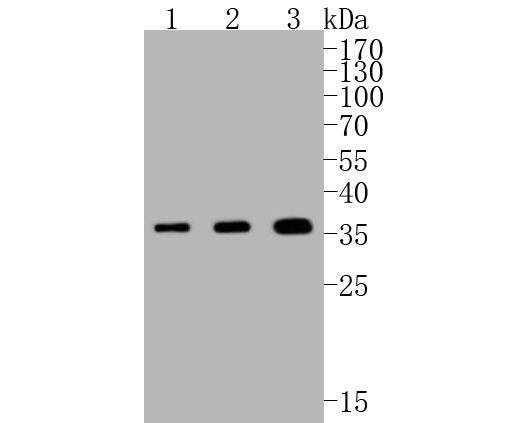 Western blot analysis of PIM1 on different lysates. Proteins were transferred to a PVDF membrane and blocked with 5% BSA in PBS for 1 hour at room temperature. The primary antibody (ET1609-57, 1/500) was used in 5% BSA at room temperature for 2 hours. Goat Anti-Rabbit IgG - HRP Secondary Antibody (HA1001) at 1:5,000 dilution was used for 1 hour at room temperature.<br />  Positive control: <br />  Lane 1: BT-20 cell lysate<br />  Lane 2: HepG2 cell lysate<br />  Lane 3: SW480 cell lysate