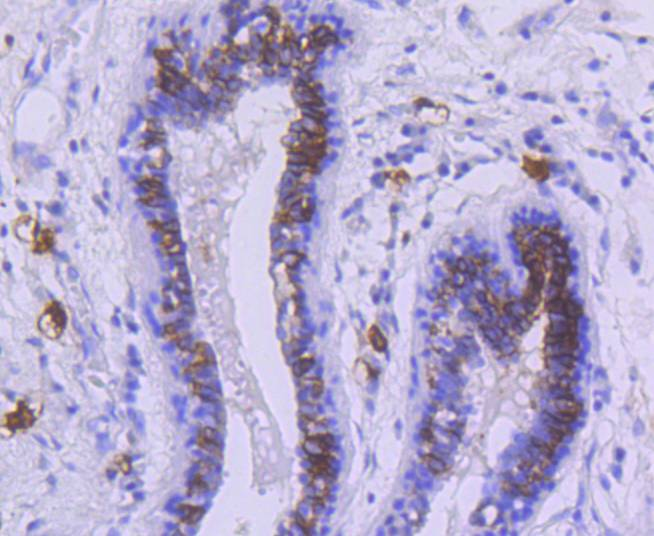 Immunohistochemical analysis of paraffin-embedded human breast carcinoma tissue using anti-c-Kit antibody. The section was pre-treated using heat mediated antigen retrieval with Tris-EDTA buffer (pH 8.0-8.4) for 20 minutes.The tissues were blocked in 5% BSA for 30 minutes at room temperature, washed with ddH2O and PBS, and then probed with the primary antibody (ET1609-60, 1/50) for 30 minutes at room temperature. The detection was performed using an HRP conjugated compact polymer system. DAB was used as the chromogen. Tissues were counterstained with hematoxylin and mounted with DPX.
