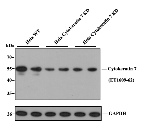 Western blot analysis of Cytokeratin 7 on different lysates. Proteins were transferred to a PVDF membrane and blocked with 5% BSA in PBS for 1 hour at room temperature. The primary antibody (ET1609-62, 1/500) was used in 5% BSA at room temperature for 2 hours. Goat Anti-Rabbit IgG - HRP Secondary Antibody (HA1001) at 1:5,000 dilution was used for 1 hour at room temperature.<br />  Positive control: <br />  Lane 1: A549 cell lysate<br />  Lane 2: HepG2 cell lysate<br />  Lane 3: SK-Br-3 cell lysate<br />  Lane 4: SW1990 cell lysate