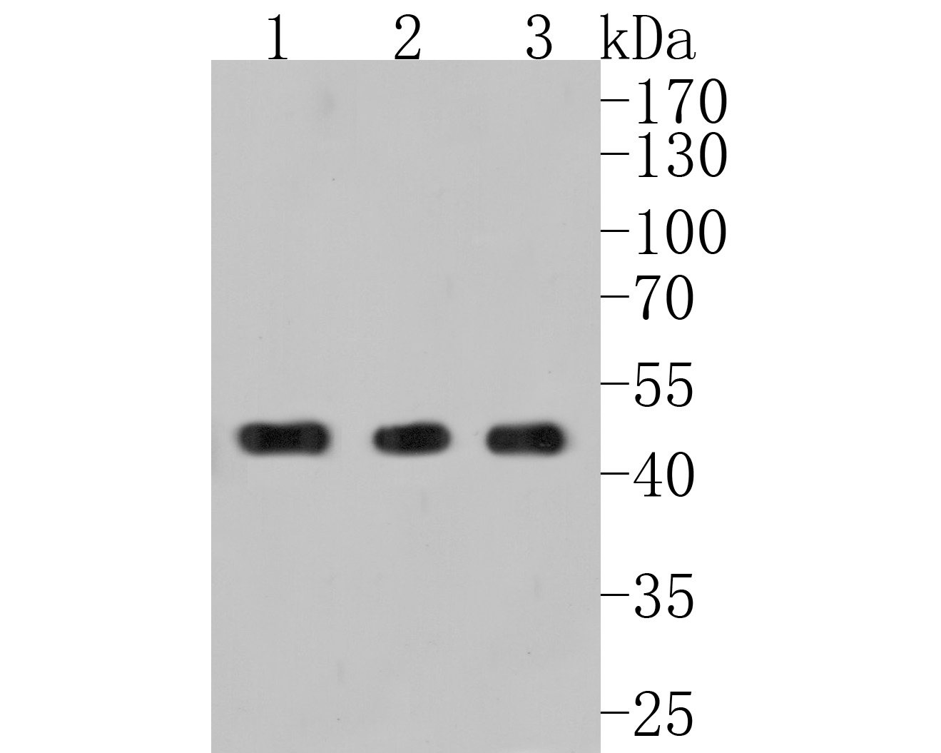 Western blot analysis of PGK1 on different lysates. Proteins were transferred to a PVDF membrane and blocked with 5% BSA in PBS for 1 hour at room temperature. The primary antibody (ET1609-63, 1/500) was used in 5% BSA at room temperature for 2 hours. Goat Anti-Rabbit IgG - HRP Secondary Antibody (HA1001) at 1:5,000 dilution was used for 1 hour at room temperature.<br /> Positive control: <br /> Lane 1: Hela cell lysate<br /> Lane 2: MCF-7 cell lysate<br /> Lane 3: HepG2 cell lysate