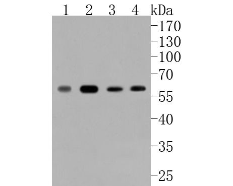 Western blot analysis of Phospho-c-Myc(S62) on different lysates. Proteins were transferred to a PVDF membrane and blocked with 5% BSA in PBS for 1 hour at room temperature. The primary antibody (ET1609-64, 1/500) was used in 5% BSA at room temperature for 2 hours. Goat Anti-Rabbit IgG - HRP Secondary Antibody (HA1001) at 1:5,000 dilution was used for 1 hour at room temperature.<br /> Positive control: <br /> Lane 1: A549 cell lysate<br /> Lane 2: HCT116 cell lysate<br /> Lane 3: Hela cell lysate<br /> Lane 4: HepG2 cell lysate