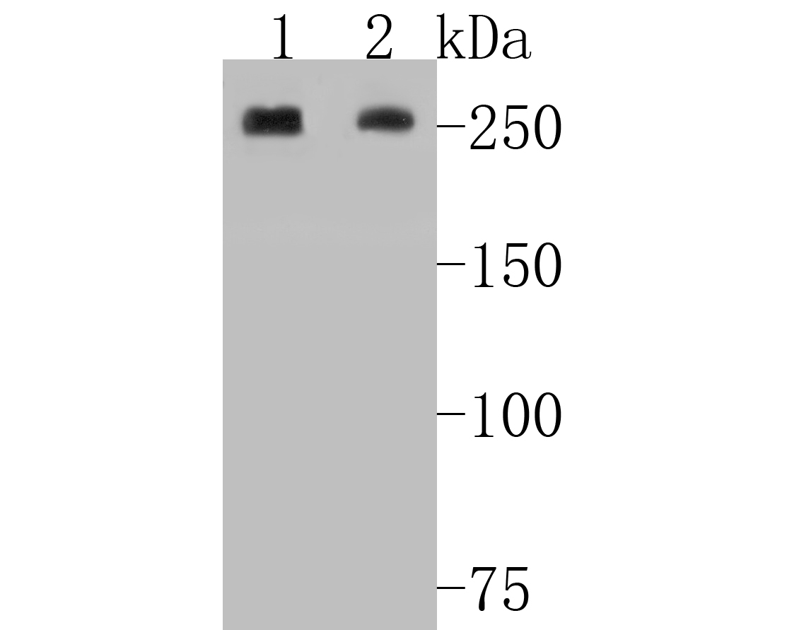 Western blot analysis of Acetyl CoA Carboxylase 1(ACC1) on different lysates. Proteins were transferred to a PVDF membrane and blocked with 5% BSA in PBS for 1 hour at room temperature. The primary antibody (ET1609-77, 1/500) was used in 5% BSA at room temperature for 2 hours. Goat Anti-Rabbit IgG - HRP Secondary Antibody (HA1001) at 1:5,000 dilution was used for 1 hour at room temperature.<br />  Positive control: <br />  Lane 1: A549 cell lysate<br />  Lane 2: mouse liver tissue lysate
