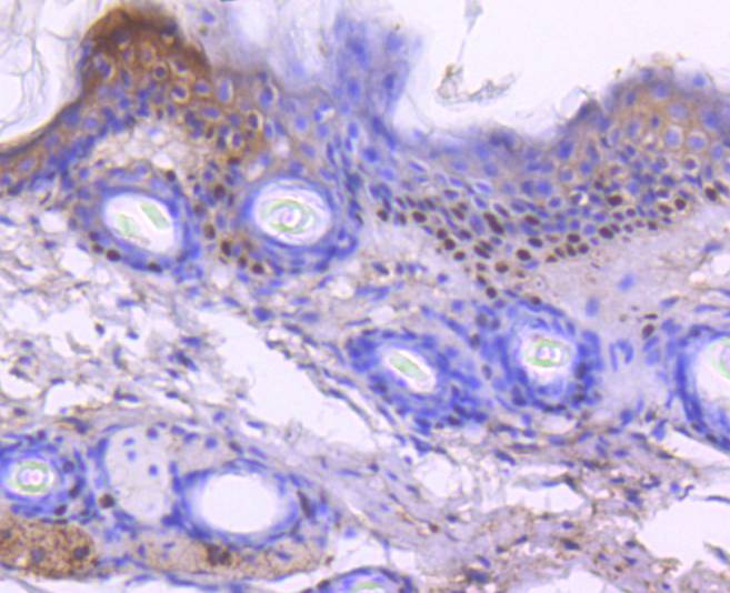 Immunohistochemical analysis of paraffin-embedded mouse skin tissue using anti-p73 antibody. Counter stained with hematoxylin.
