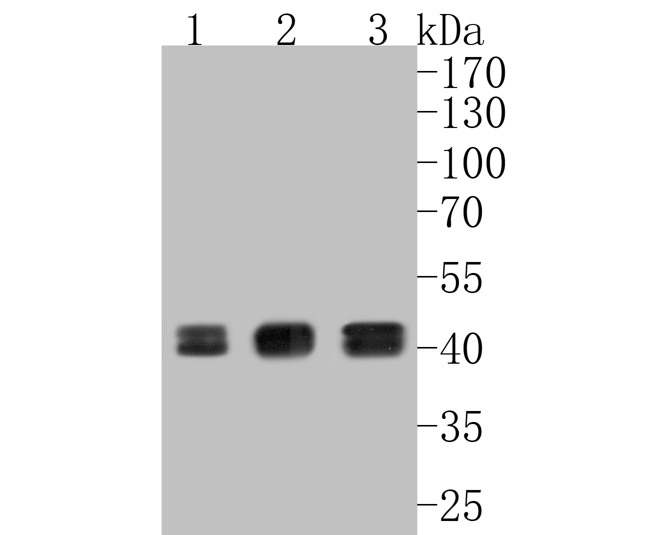 Western blot analysis of Erk1(pT202/pY204)+Erk2(pT185/pY187) on different lysates. Proteins were transferred to a PVDF membrane and blocked with 5% BSA in PBS for 1 hour at room temperature. The primary antibody (ET1610-13, 1/500) was used in 5% BSA at room temperature for 2 hours. Goat Anti-Rabbit IgG - HRP Secondary Antibody (HA1001) at 1:5,000 dilution was used for 1 hour at room temperature.<br /> Positive control: <br /> Lane 1: A431 cell lysate<br /> Lane 2: MCF-7 cell lysate<br /> Lane 3: SK-Br-3 cell lysate